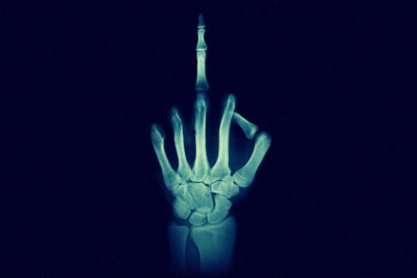 Mittelfinger beim Röntgen